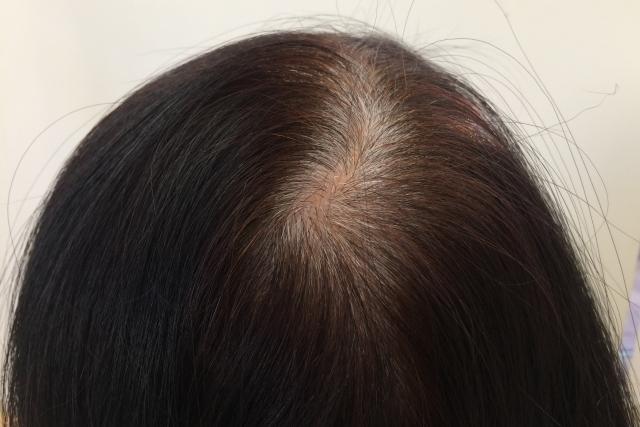 白髪染めの部分染