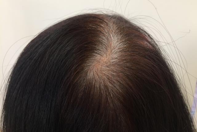 プロテインで白髪を予防出来る理由