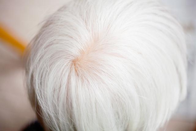 白髪が真っ白