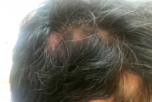 白髪染めと円形脱毛症